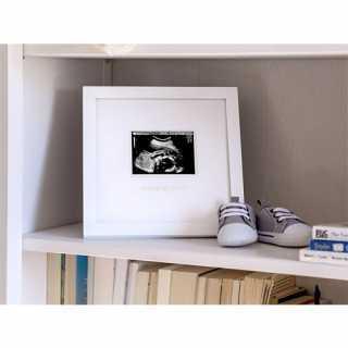 Cadre sonogram souvenir de grossesse